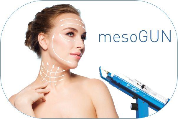 02.04.-mezoterapia-igowa-mesogun-sg