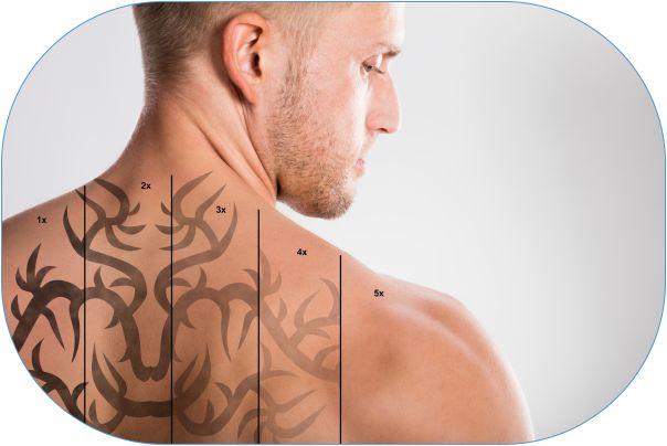 02.10.-usuwanie-tatuay-sg